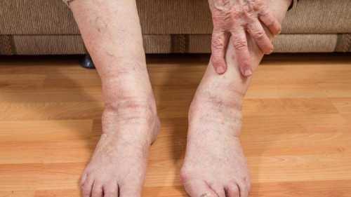Самые популярные болезни ступней ног