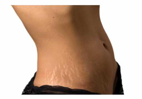 5 способов убрать растяжки на коже