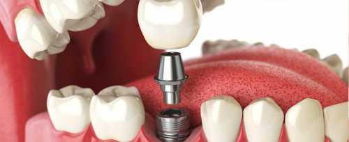 Имплантация зубов: 10 важных вопросов