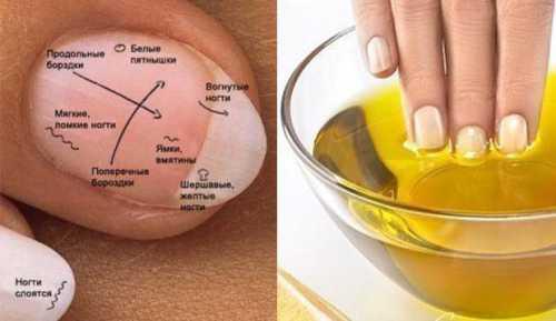 Как укрепить ногти в домашних условиях: эффективные рецепты