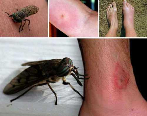 Чем опасны укусы насекомых