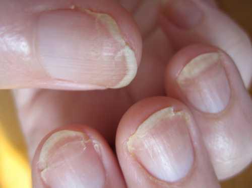 Ломкие ногти Причины и помощь